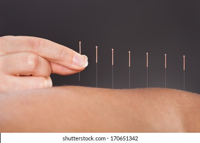 Close-up Of A Person Getting An Acupuncture Treatment At Spa