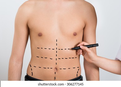Close-up Of Person Hands Drawing Correction Lines On Abdomen Of Man