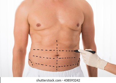 Close-up Of Person Hands Drawing Perforation Lines On Stomach With Marker