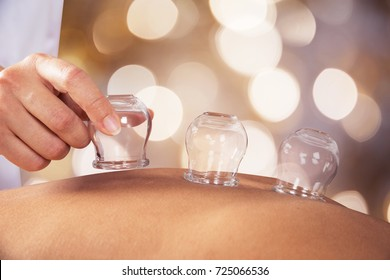 Close-up Of A Person Receiving Cupping Treatment On Back In Spa