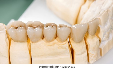 Closeup photo of a dental ceramic bridge