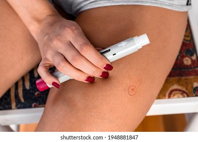 Close-up photography of stab on the thigh. The person used a shot pen injection. Medical treatment.