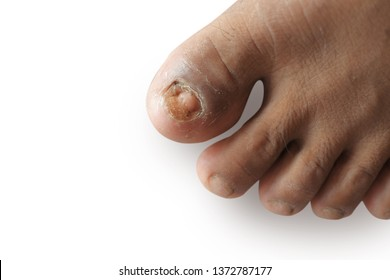 Close-up pictures of fungal toe nails