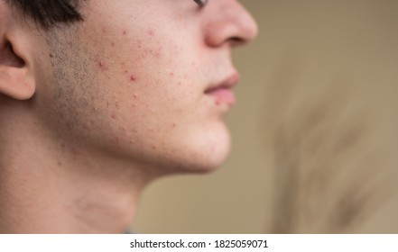 Close-up portrait on the skin of a young Caucasian boy in pubertal age: on his skin there are several recognizable pimples at different times of their life cycle. Selective focus.