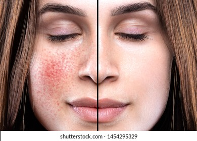 A closeup portrait showing the before and results on the cheeks of a young girl who suffers from rosacea. Intensive light treatment successfully clears the symptoms.