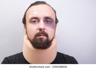 Closeup portrait of a young guy with bruises on his face, with a neck injury. The collar is placed in the neck to immobilize the cervical vertebrae.