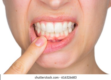 Closeup portrait of young woman showing, with his finger, the lower gingiva with pain expression. Dental care and toothache.