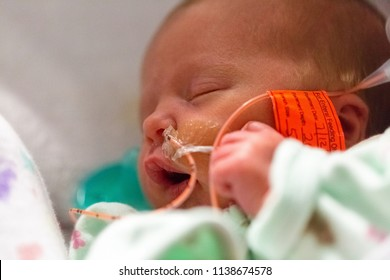 Closeup of premature infant baby in the neonatal intensive care unit with a feeding tube through nose