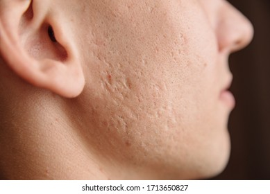 Close-up of problem skin with deep acne scars on a young man's cheek