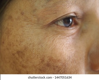 Closeup problem wrinkles dark spots melasma pigmentation skin on face asian woman. Problem skincare and health concept.