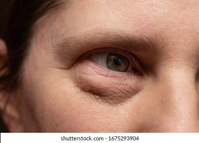 Closeup of a puffy eye with dark bags under the eyelid due to stress or bad water retention