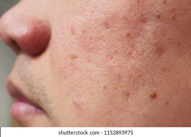 Closeup of red skin with acne moles and pores on the face of a young Asian man. Health, medical, beauty, aesthetics concept