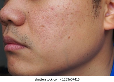 Closeup of red skin with acnes, pores and moles on the face of a young Asian man. Health, medical, beauty, aesthetics concept