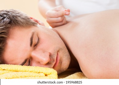 Closeup of relaxed young man receiving acupuncture treatment in spa