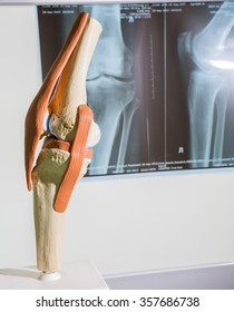 closeup the scale model layout of the artificial knee made of colored plastic on the background x-ray leg and knee