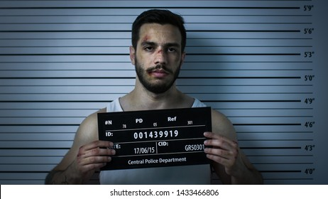 Close-up Shot of an Arrested Beaten Man in a Police Station Poses for Front View Mugshot. He Wears Singlet, is Heavily Bruised and Holds Placard. Height Chart in the Background.