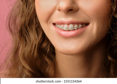 Closeup shot of pretty female smile with dental braces isolated on pink background