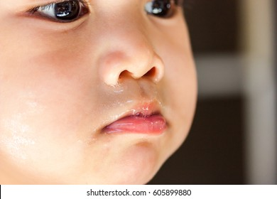 Closeup sickness Asian baby boy face