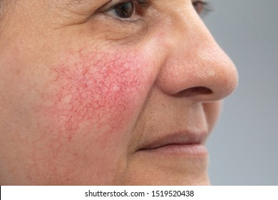 A closeup and side profile view of a mature caucasian woman, red and blotchy cheeks are seen in detail, the main symptom of rosacea, can be treated with topical creams or laser surgery.
