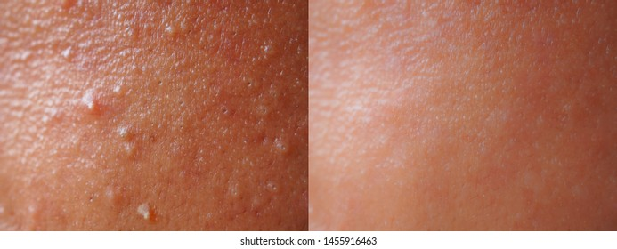 Closeup skin face texture before and after facial treatment problem of spot acne blackheads on forehead young Asian woman background . Problem skincare and beauty concept.