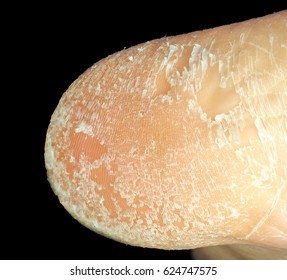 Closeup of skin peeling off from sole of foot towards black