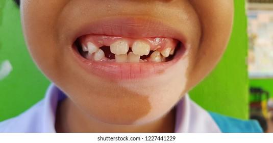 closeup  smile girl and Vitiligo on chin
