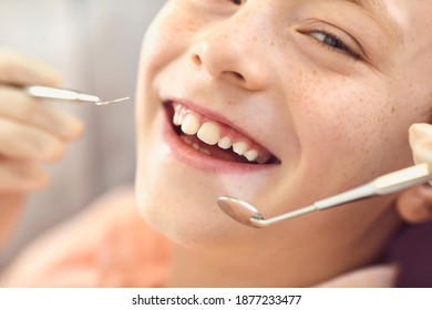 Close-up smiling child boy check-up in dentist office. Caries prevention and dental treatment. Healthy teeth and smile. Dentistry. Children's doctor orthodontist. Dentist appointment. Orthodontics.