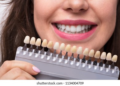 Close-up Of A Smiling Woman Holding Set Of Implants With Various Shades Of Tone