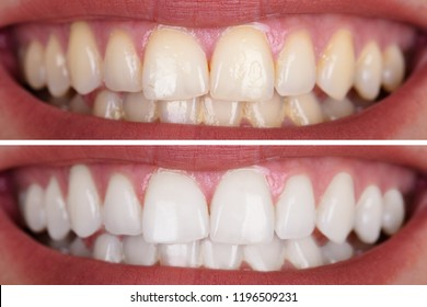 Photo of Close-up Of A Smiling Woman's Teeth Before And After Whitening