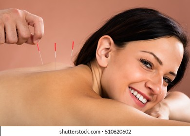 Close-up Of A Smiling Young Woman Receiving Acupuncture Treatment In Spa