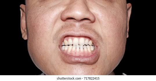 Closeup of a snarling man's mouth gnarling his teeth.