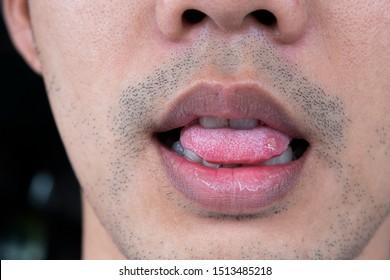 Close-up Sore tongue, aphthous stomatitis ,lip leison.