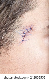 Close-up stitched wounds after skin biopsy on the man's face
