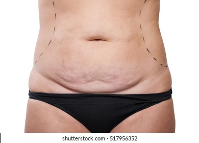 Close-up Stretching  Body.  Surgery Abdomen, Fat Female Body in Stretch Marks, Excess Fat and Cellulitis, Marker Woman's Body for Abdominal Liposuction - Image