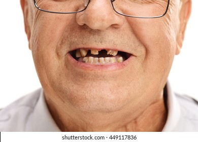 With teeth men bad Social experiment