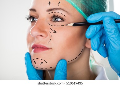 Close-up Of A Surgeon Drawing Perforation Lines On Young Woman's Face For Plastic Surgery