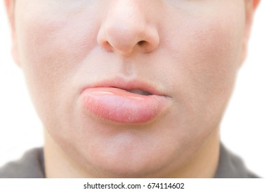 Closeup of a swollen lip of a young caucasian woman caused by a insect bite on white background