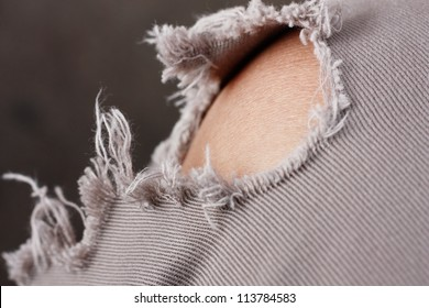 Closeup of tear in old worn out jeans