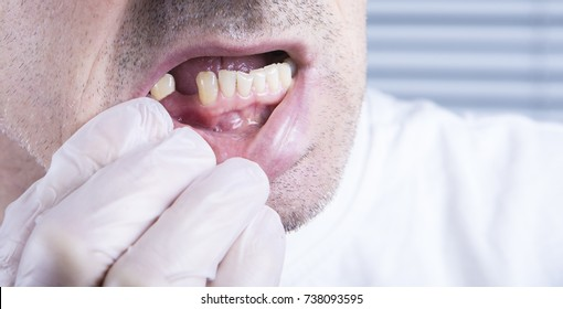 Closeup teeth, dental health care clinic with missing tooth