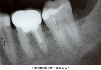 Closeup of Teeth x-ray showing problem with infected gum and failed root