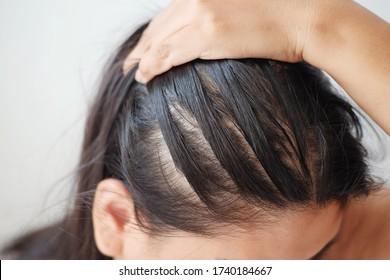 Closeup thin hair on scalp of head woman.