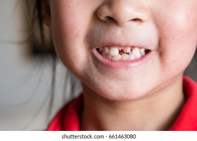 Close-up of toothless kid mouth with missing and deformed front teeth