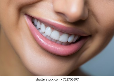 Closeup of a toothy smile