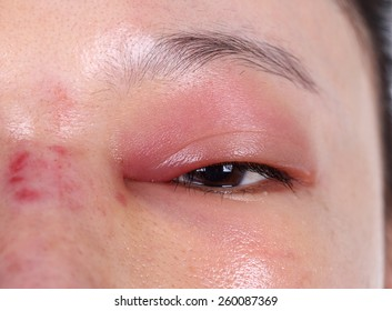 close-up of upper eye lid swell after nose job plastic surgery