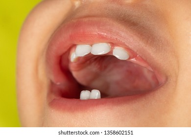 A closeup view of baby teeth inside the mouth a Caucasian toddler, happy with laughter.