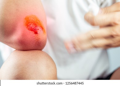 Close-up view of cleaning a bleeding wound under the shin After the accident, traumatic pain, burns.