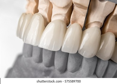 Close-up view of dental layout of upper row of teeth prothesis on artificial jaw, medical concept