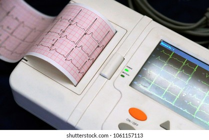Closeup view of ECG machine display and print out trip chart indicating pulse tare and condition of a patient
