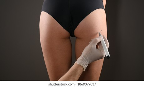 Closeup view of female buttocks marked for plastic operation, on gray background