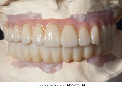 The close-up view of full arch full milled zirconia implant supported bridge with pink porcelain on a stone model with oblique lighting with dark background